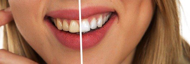 Bílé zuby jako hollywoodská hvězda